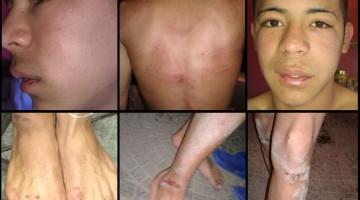 torturan-chicos-garganta-21